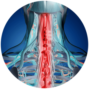 neck strain and sprain in cervical spine