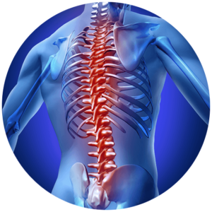 irritated spine with spondylosis