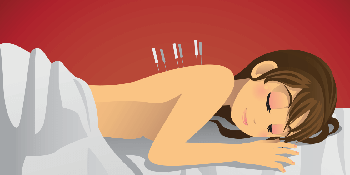 Woman with back pain receives acupuncture therapy