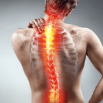 man with scoliosis clutches upper back
