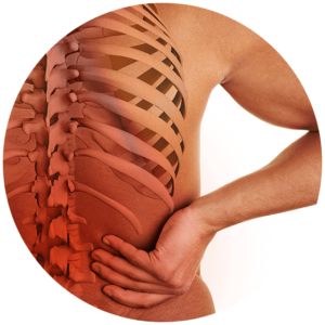 spine-with-osteoarthritis
