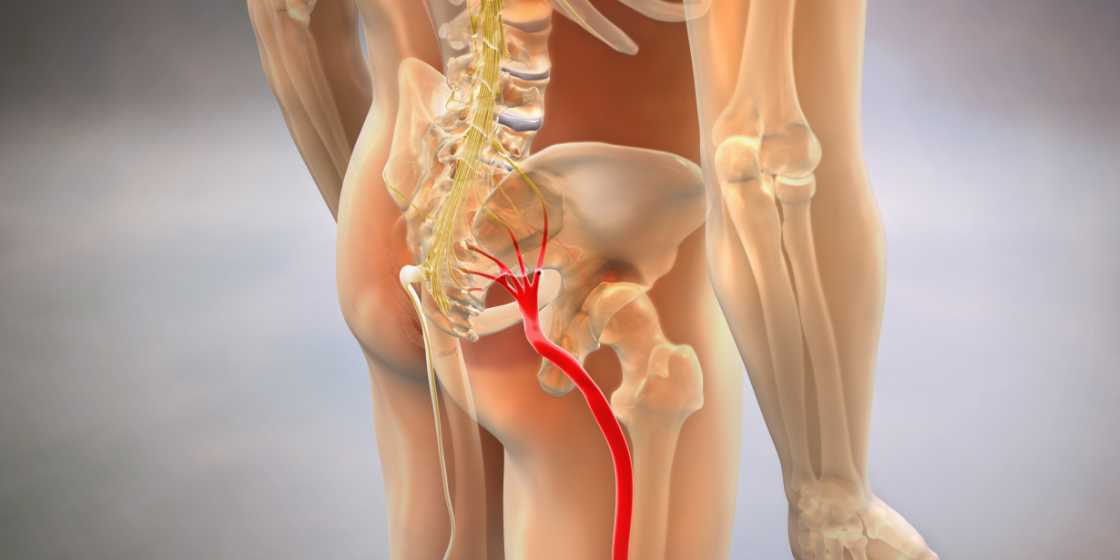 sciatica surgery for inflamed sciatic nerve