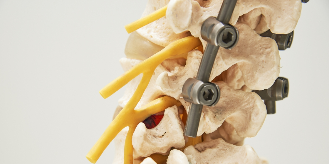 spine model with pedicle screws