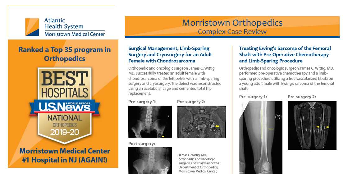morristown medical center complex case review